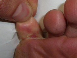 Facts About Athlete's Foot - Causes, Symptoms and Triggers