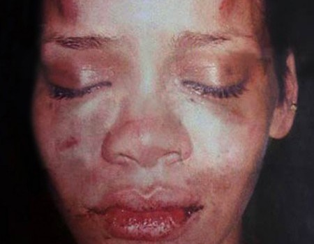 Chris Brown did this to Rihanna but yet she got back together with him years later.  This is not a lesson girls should be taught.