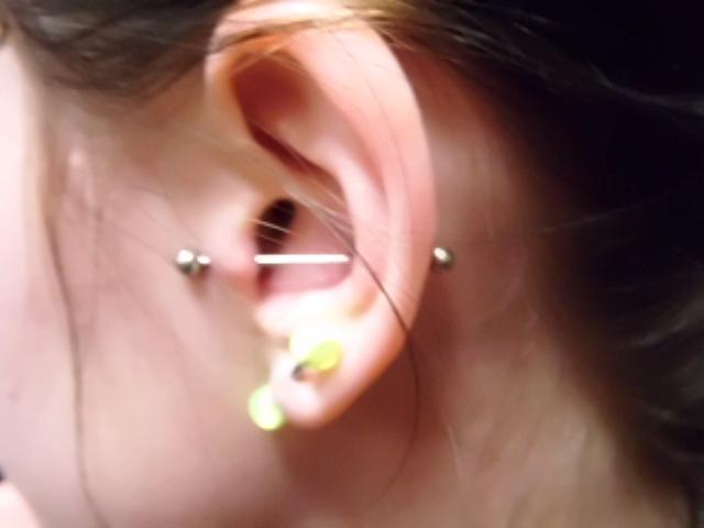 Can Hydrogen Peroxide Cure Ear Piercing Infection Tatring