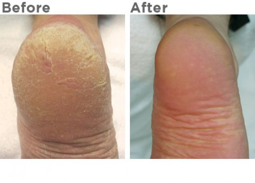 Non-Invasive treatment of Calluses to heel area