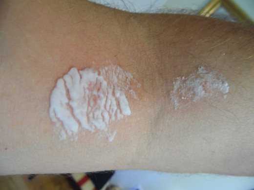 Baking soda paste on poison ivy rash.
