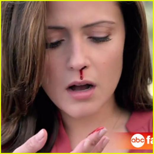 A nosebleed a common symptom of Leukemia.