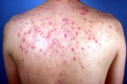 My back resembled something like this
