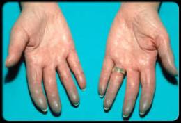 Swollen and blue hands