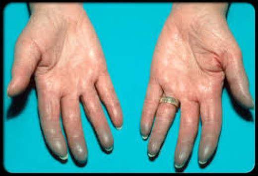 Swollen and blue hands