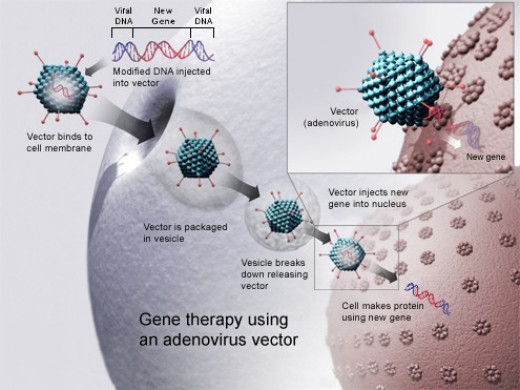 An adenovirus vector is used to insert a new gene into a cell, if successful, the new gene will make functional protein to treat a disease.