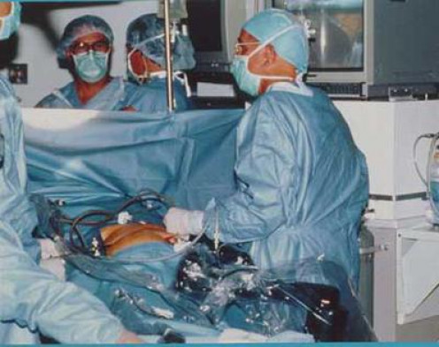 Laparoscopic surgery being performed. I suggest watching the video below as well for more informaton