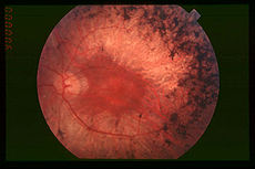 Fundus of patient with retinitis pigmentosa, mid stage (Bone spicule-shaped pigment deposits are present in the mid periphery along with retinal atrophy, while the macula is preserved although with a peripheral ring of depigmentation. Retinal vessels