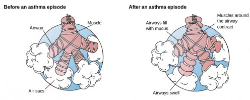 Asthma - Before and After