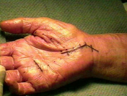 Carpal Tunnel Surgery - Recovery time, Procedure, Cost, Pictures, Complications