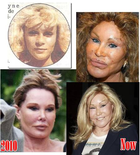 A view of Jocelyn Wildenstein throughout the years. How she originally looked before getting any surgery appears on the top-left.