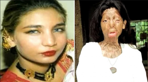 "Acid attack victim Fakhra Younus tremendously suffered at the hands of her ""dishonored"" ex-husband. She committed suicide by jumping from her sixth floor apartment window in the early spring of 2012."