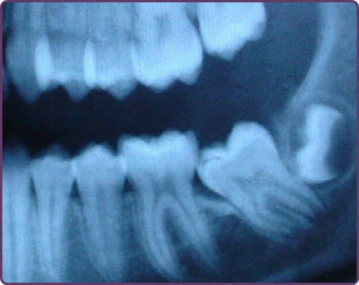 An impacting wisdom tooth