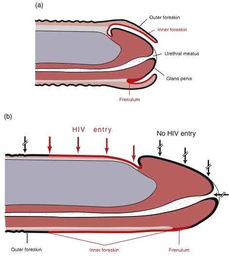 Increased keratinization will reduce abrasions and tears lowering the risk of  HIV transmission A. Flaccid, B. Erect (McCoombe SG and Short RV. Potential HIV-1 target cells in the human penis. AIDS 2006, 20: 1491-1495.)