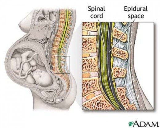 Where an epidural is inserted