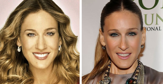 Celebrity Plastic Surgery Plastic Surgery On The Stars