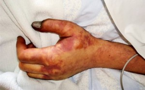 Damage to hand due to the drug