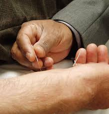 Acupuncture Does Not Hurt And Relieves A Long List Of Illnesses
