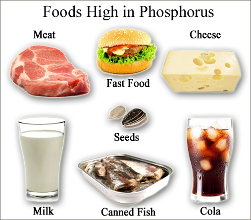 Common foods high in phosphate