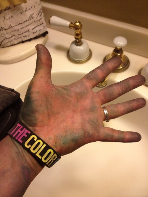 My hand after the race before washing it.