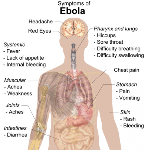 Symptoms of ebola vary and start out like the flu