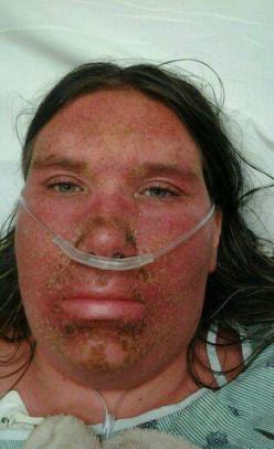 My Stevens Johnson Syndrome Story