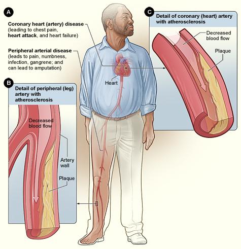 Smoking  and Athelosclerosis