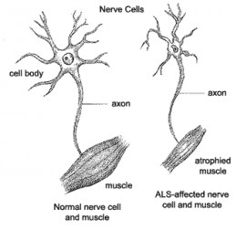 Compare normal nerve cells and muscles with those of an ALS patient.
