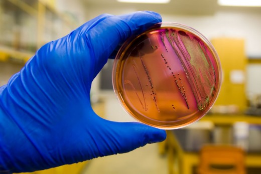 E-coli can only be diagnosed with a laboratory test