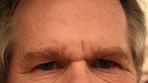 Easy Treatment and Tips for Flaky and Dry Skin on Forehead and Face