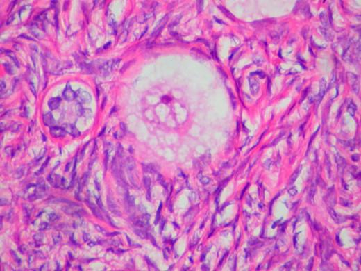 A human ovum (egg).