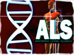 Amyotrophic Lateral Sclerosis (ALS) - More Popularly Known In The US as Lou Gehrig's Disease