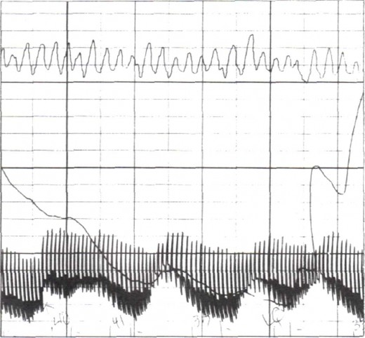 The graph illustrates the classic lie response: decrease in depth of breathing (top line), sharp increase in sweating (middle line), and a delayed rise in blood pressure (bottom line).