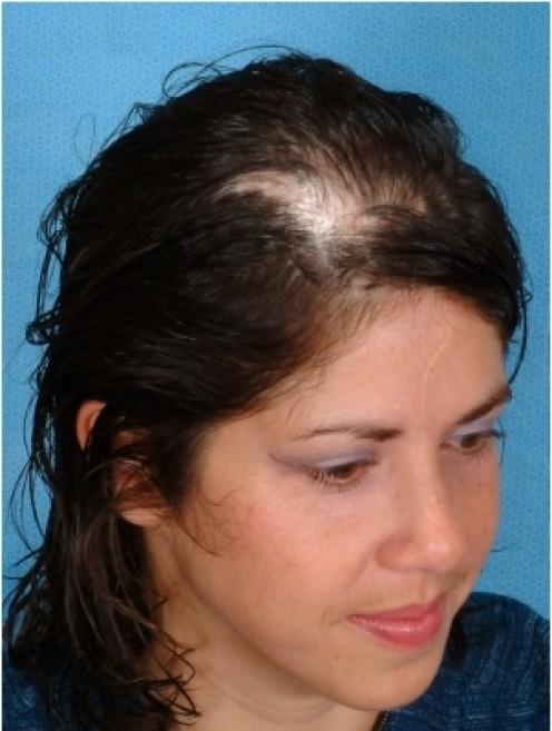 Scarring Alopecia [3]