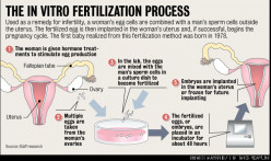 An overview of In Vitro Fertilization