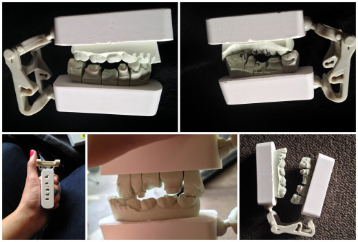 This is how my jaw goes together; Really!  It's my mouth model.