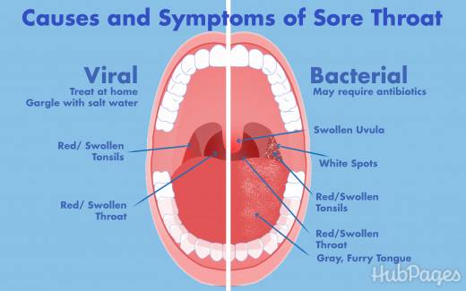 Sour taste in the mouth - reasons. Why the sour taste in the mouth