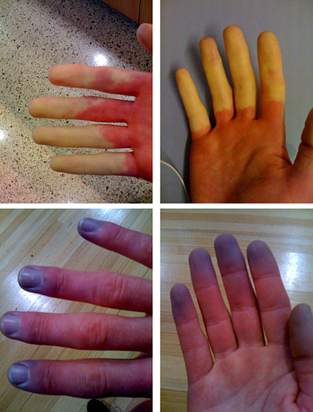 Raynaud's phenomenon: white and blue fingertips