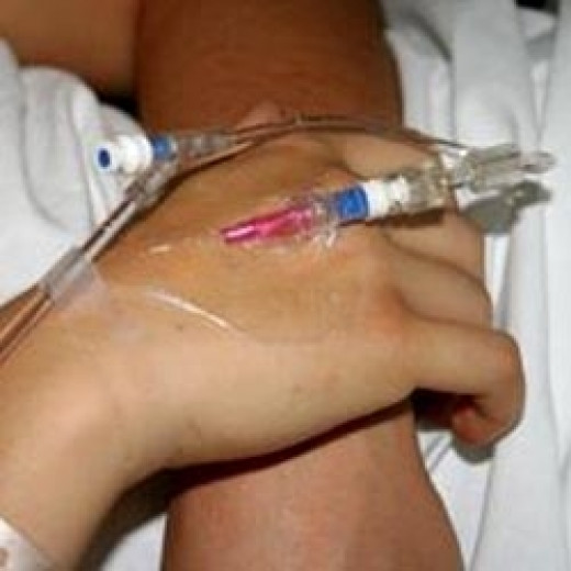 Hand with an IV in the hospital