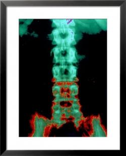 back pain chronic pain