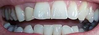 Invisalign Before And After Pictures Set &