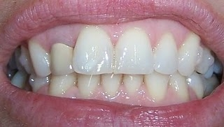 Invisalign Before And After Set 10