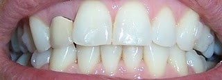 Invisalign Before And After Pictures Set 14