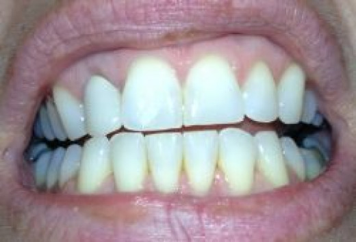 Fifty sets of Invisalign