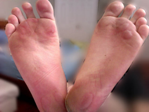 Blisters - a common running injury!