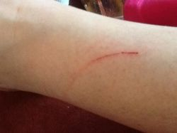 Just one of the many scratches he left on my legs when he attacked