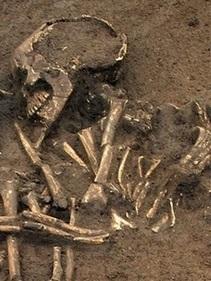 Unearthed Human Bones