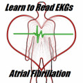 The Basics of Ekg Interpretation and Rhythm Recognition: Atrial Fibrillation