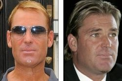 Shane Warne before and after