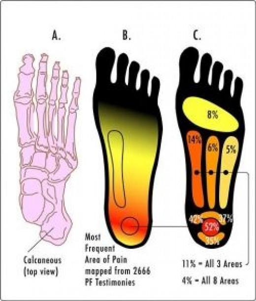 Plantar Fasciitis pain is most commonly felt in the heel of the foot.